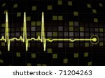 heart monitor screen in... | Shutterstock .eps vector #71204263
