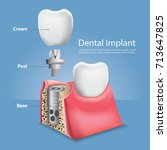 human teeth and dental implant... | Shutterstock .eps vector #713647825