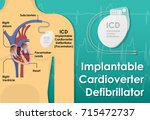 pacemaker icd implantable... | Shutterstock .eps vector #715472737