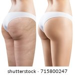 female buttocks before and... | Shutterstock . vector #715800247