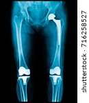 xray scan of patient who have... | Shutterstock . vector #716258527