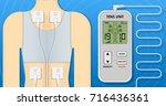 digital tens transcutaneous...   Shutterstock .eps vector #716436361