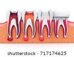 Stages Of Root Canal Treatment...