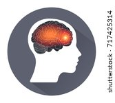 migraine. human headache... | Shutterstock .eps vector #717425314