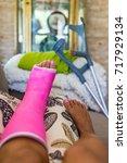 woman with broken leg broken... | Shutterstock . vector #717929134