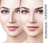 female nose before and after... | Shutterstock . vector #719394799