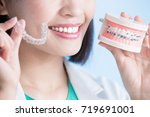 woman dentist take brace on the ... | Shutterstock . vector #719691001