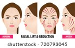 facial lift and reduction... | Shutterstock .eps vector #720793045