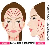 facial lift and reduction... | Shutterstock .eps vector #720793057