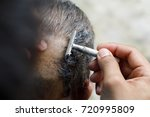 Small photo of tonsure of men