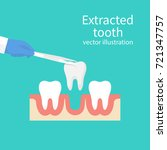 extracted tooth in tongs.... | Shutterstock .eps vector #721347757