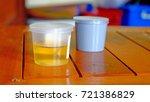 urine sample test urine and...   Shutterstock . vector #721386829