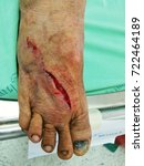 Small photo of laceration wound at right foot, emergency room
