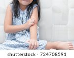 girl scratch the itch with hand ... | Shutterstock . vector #724708591