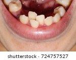 overlap teeth  crowding tooth ...   Shutterstock . vector #724757527