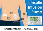 insulin infusion pump on... | Shutterstock .eps vector #725063101
