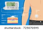 insulin infusion pump on... | Shutterstock .eps vector #725070595