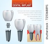 dental implant vector... | Shutterstock .eps vector #725368891