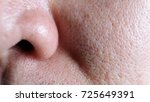 asian male nose and cheek close ... | Shutterstock . vector #725649391