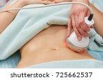 rf skin tightening  belly. hand ... | Shutterstock . vector #725662537