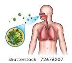 some virus entering the... | Shutterstock . vector #72676207