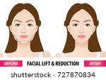 facial lift and reduction... | Shutterstock .eps vector #727870834