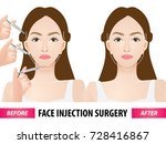 face injection surgery before...   Shutterstock .eps vector #728416867