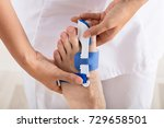 close up of a orthopedist...   Shutterstock . vector #729658501