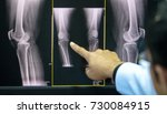 doctor pointing on the knee... | Shutterstock . vector #730084915