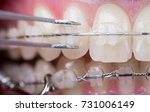 dentist checking up teeth with... | Shutterstock . vector #731006149