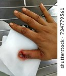 Small photo of laceration wound right thumb and nail injury, emergency room