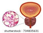 benign prostatic hyperplasia ... | Shutterstock . vector #734835631