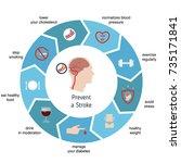 infographics for stroke.... | Shutterstock .eps vector #735171841