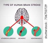brain stroke vector logo icon... | Shutterstock .eps vector #736753729