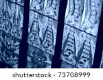 real mri scan of human spine | Shutterstock . vector #73708999