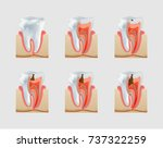 healthy untreated tooth and...   Shutterstock .eps vector #737322259