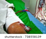 Small photo of Dialysis is treatment of patients with renal failure