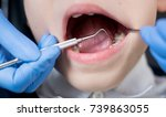 close up of dentist's hand... | Shutterstock . vector #739863055