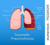 symptom spontaneous iatrogenic... | Shutterstock .eps vector #742265245