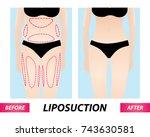 liposuction   woman fat surgery ... | Shutterstock .eps vector #743630581