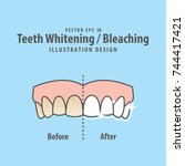 compare upper teeth whitening... | Shutterstock .eps vector #744417421