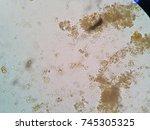 entamoeba coli cyst  iodine  | Shutterstock . vector #745305325