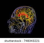 topographic map mri of the... | Shutterstock . vector #748343221