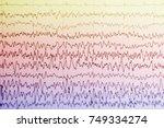 Eeg Wave In Human Brain...