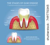 human teeth gum disease and... | Shutterstock .eps vector #749770345