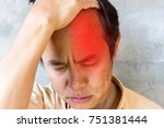 four kinds of headaches  sinus... | Shutterstock . vector #751381444