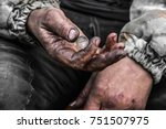 Homeless Poor Man With One Cen...