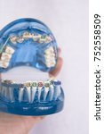Small photo of Denture for students with classic dental metal orthodontics. Color aesthetic couplings.