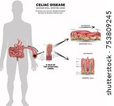 celiac disease affected small... | Shutterstock . vector #753809245