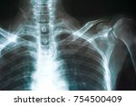 film chest x ray  show normal...   Shutterstock . vector #754500409
